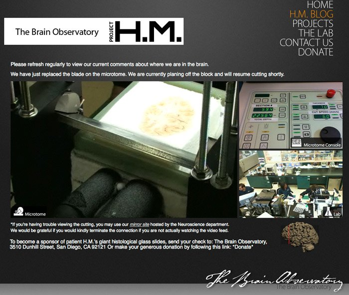 The Brain Observatory