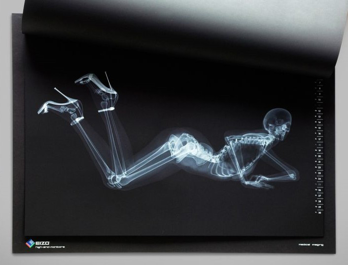 X Ray Calendar : X ray pin up calendar the awesomer