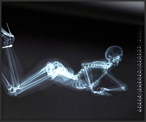 X-ray Pin-Up Calendar