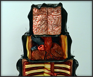 The Dissected Cake