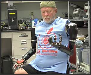 The Man with Two Robot Arms