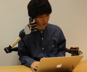 MetaLimbs Robotic Limbs