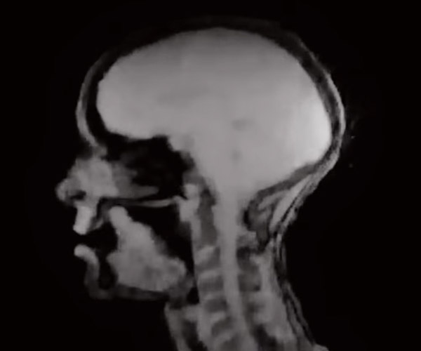 Singing in an MRI