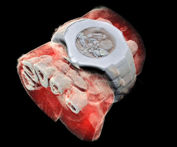 World's First Full Color 3D X-Rays