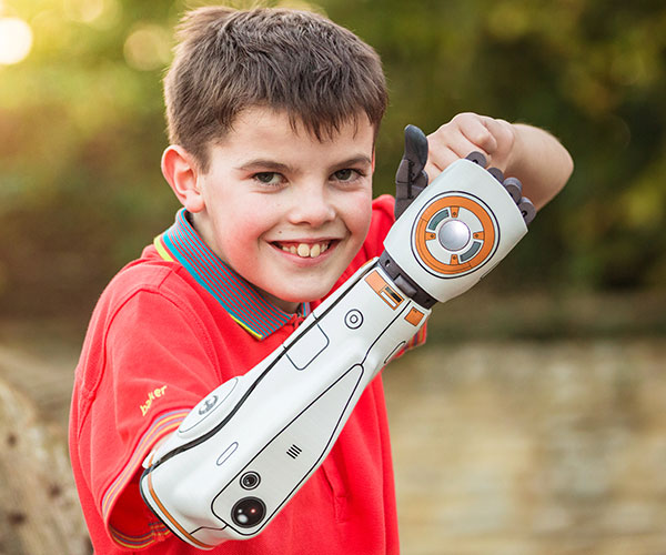 Hero Arm Bionic Arm